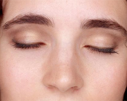 Nose Surgery Blepharoplasty Endoscopic Browlift